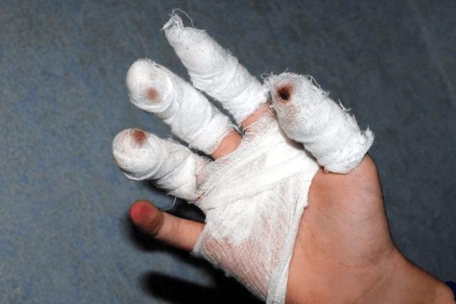 что делать если отрезало палец