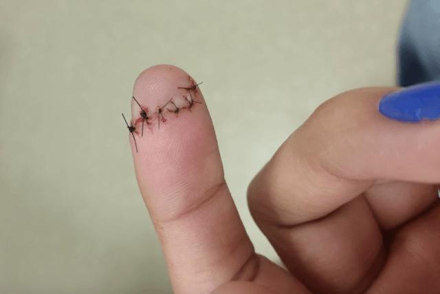 пришили палец на руке