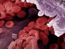 Лейкемия: симптоматика и развитие