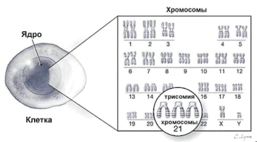 Лишняя хромосома: синдром Дауна