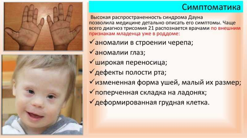 Лишняя хромосома: синдром Дауна симптомы