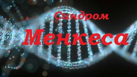 Синдром Менкеса